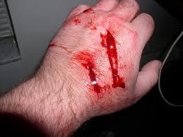 infectedcut